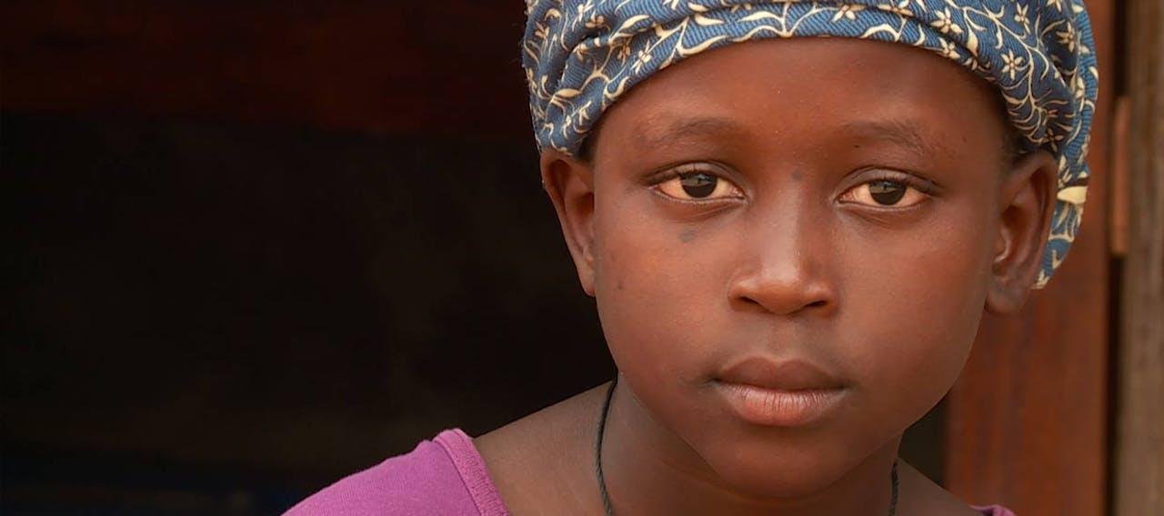 Nala close-up2_Oeganda_SOS Kinderdorpen